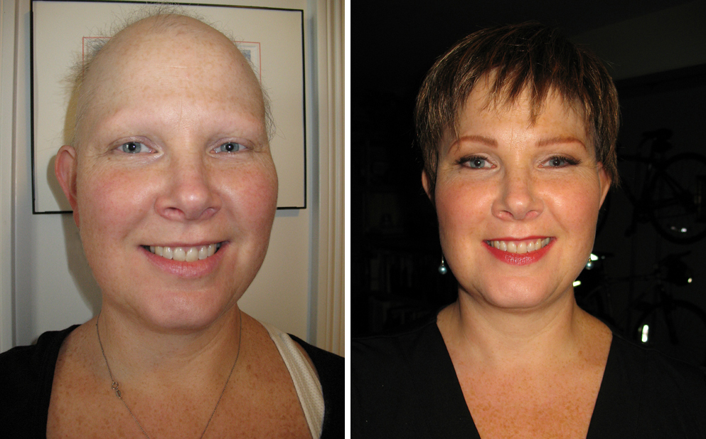 before and after of makeup for alopecia