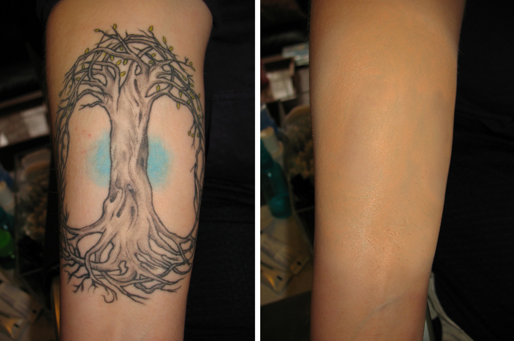 Airbrush makeup concealing a large inner arm tattoo