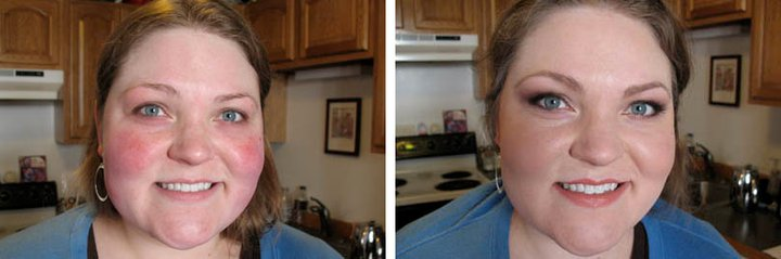 airbrush makeup before and after covering rosacea